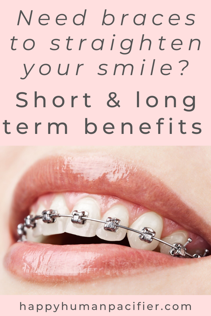 Oh, dear... Just left a dental check-up and been told you need braces? Here are the short and long term benefits of realigning your teeth with braces. #benefitsofbraces #dentalcare #selfcare