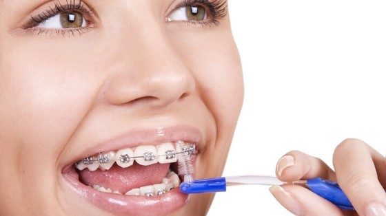 Short and Long Term Benefits of Braces